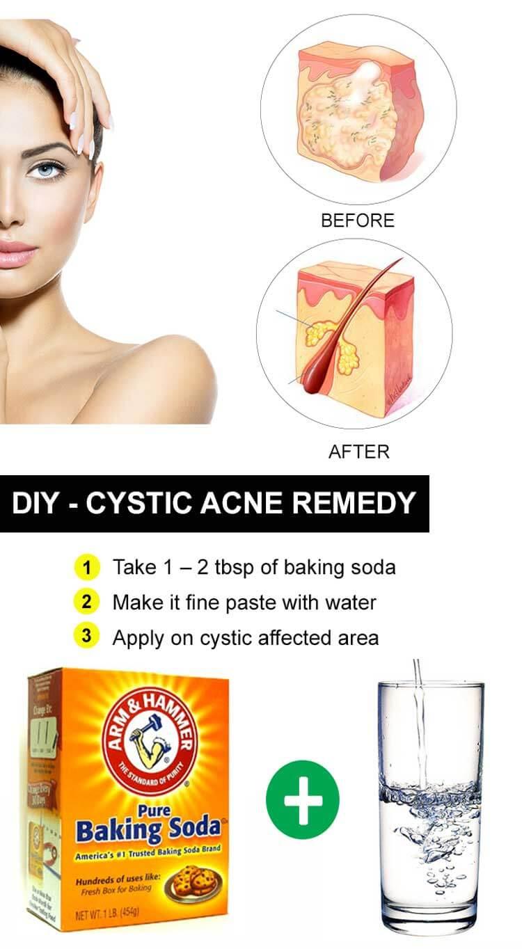 Was tun gegen Pickel und Akne? Mit Natron Hautunreinheiten bekämpfen