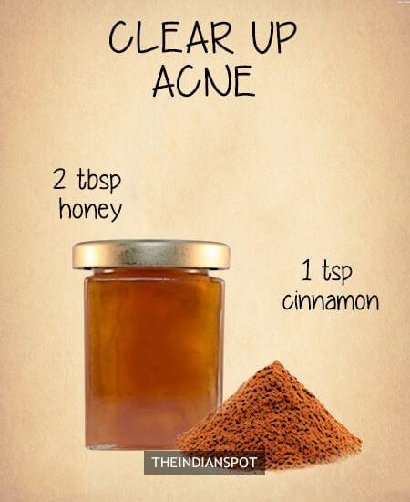 Honig und Zimt, Gesichtsmaske selber machen - DIY Rezepte gegen unreine Haut