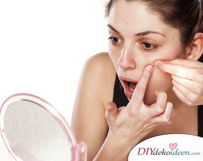 10 Hausmittel gegen Pickel - Hautunreinheiten los werden